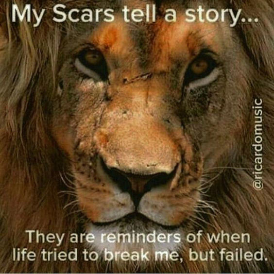 The scars tell a story